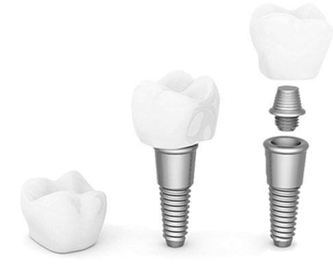 dental implant special home