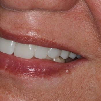 after dental bridge