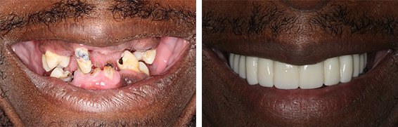 before picture of almost no teeth to an after picture of a full smile.
