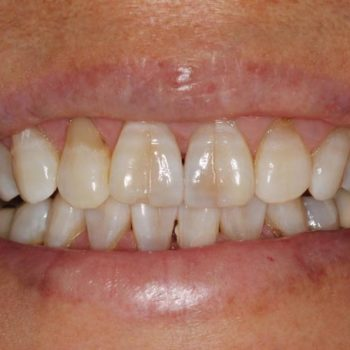 Before: Anterior Bruxzir Crowns