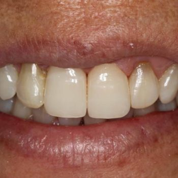 After: Anterior Bruxzir Crowns