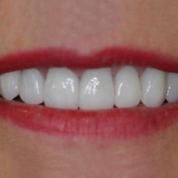 After: Veneers & Implants