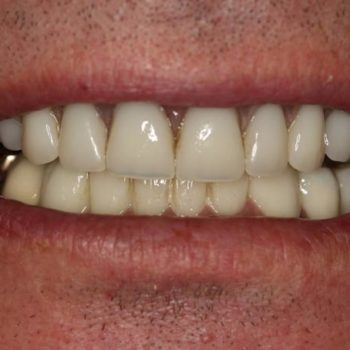 After: Dental Implants