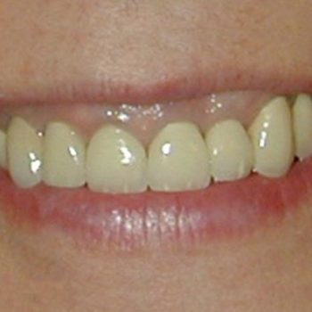 Veneers & Implants Before