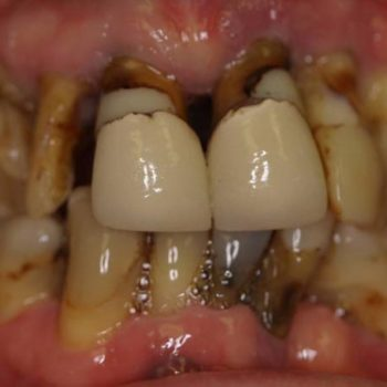 Implants & Crowns Before