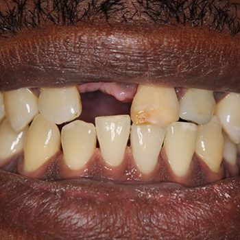 Before: Dental Implants