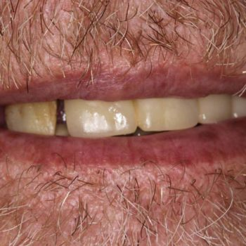 Before: Implant Hybrid Bridge