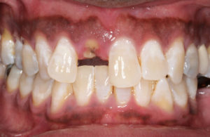 Before: Implant Retained Crown
