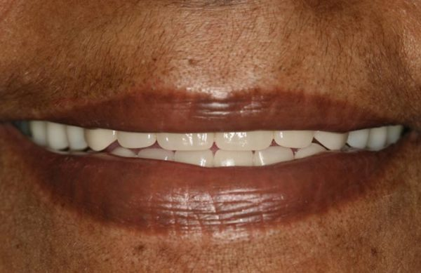 After: Implant Overdenture