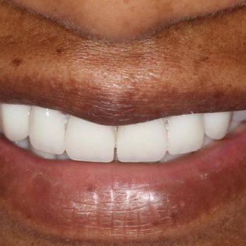After: Complete Dentures