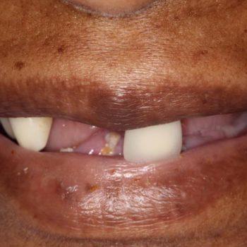 Before: Complete Dentures