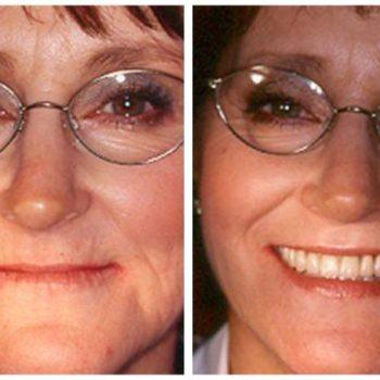 Dentures Before & After