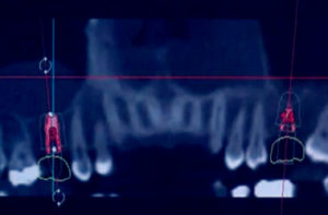digital dental implant process