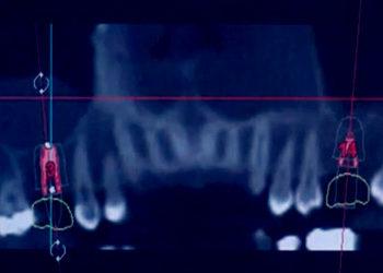 digital dental implant process