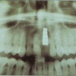 Figure 3. Radiograph of dental implant in place.