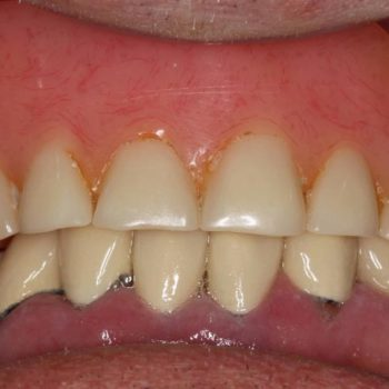 Palateless Overdenture After