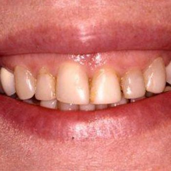 Before: Veneers