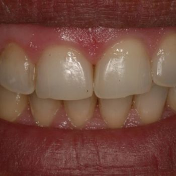 Before: Laser Whitening