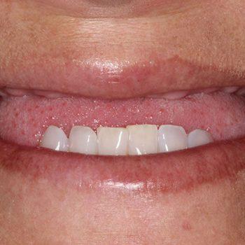Before: Missing Upper Teeth