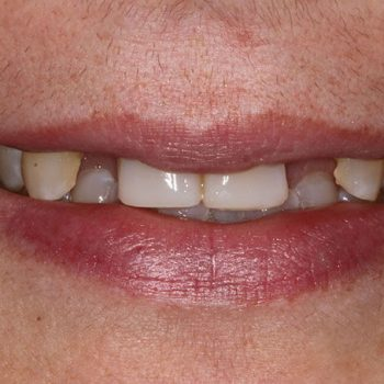 Before: Missing Lateral Incisors