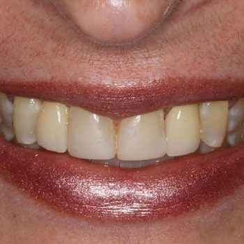 After: Implant Placement with Bruxzir Crowns