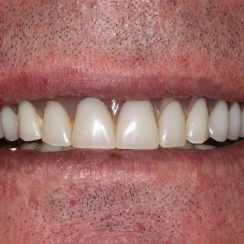 Before: Worn Denture