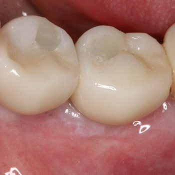 After: Replacement of missing teeth with dental implants
