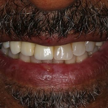 After: Placement of Dental Implants