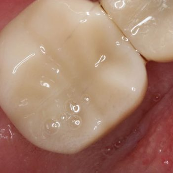After: Implant Crown