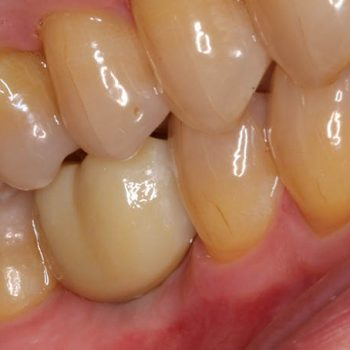 After: Replacement of Missing Tooth with a Dental Implant