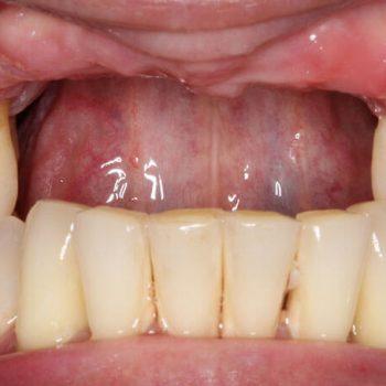 Before: Missing Teeth
