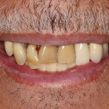 Before: Maxillary Reconstruction with Dental Implants