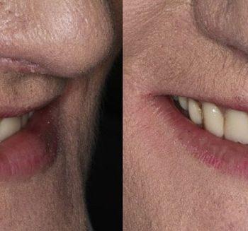 Before: Poor Esthetic Denture