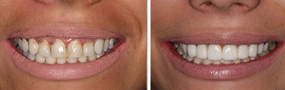 smile gallery before and after photo.