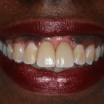 After: Final Restoration with Implants