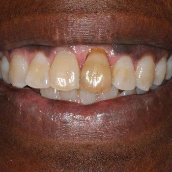 Before: Failing Tooth & Poor Esthetics