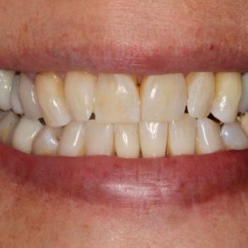 After: Laser Whitening