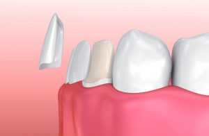 3d render of teeth with veneer being placed