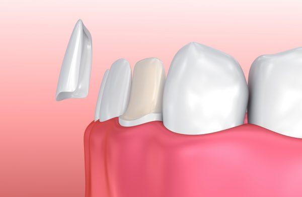 3d render of teeth with veneer being placed