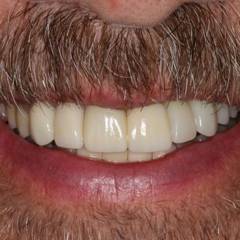 After: Implant Placement with Final Bruxzir Crown