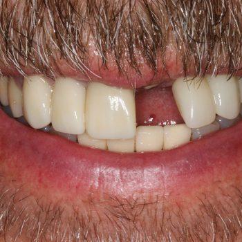 Before: Broken Tooth