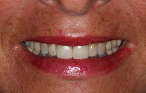 After: New Anterior Bruxzir Crowns