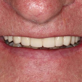 After: Hybrid After Placement of Dental Implants