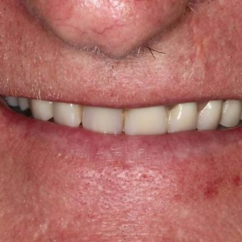 Before: Poor Esthetic Denture